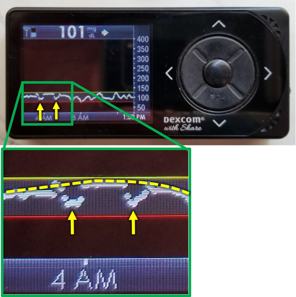 Pressure dips with zoom